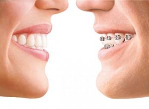 ortodoncia1-mod