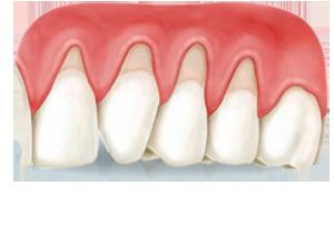 cirugia-gingival