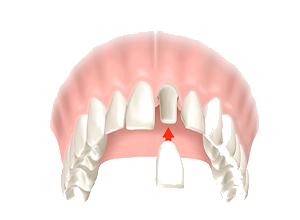 coronas-dentales